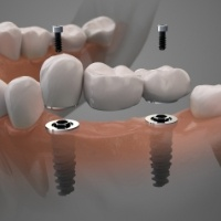 Aniamted dental implant supported fixed bridge