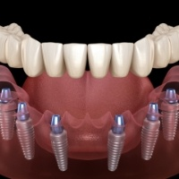 Animated dental implant supported denture