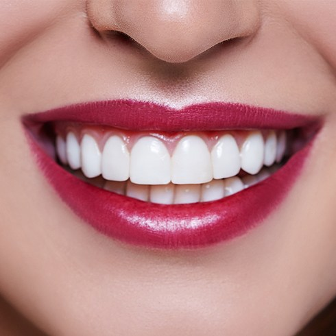Closeup of smile after scaling and root planing periodontal therapy
